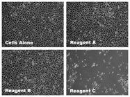Cellular Toxicity Caused by Transfection: Why is it important?