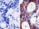 Three Keys to Better Immunohistochemistry