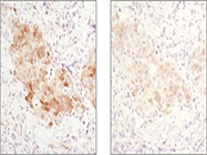 Optimizing IHC Staining