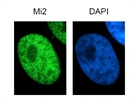 Strong Signal: Anti-Mi2 Immunofluorescence