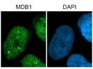 Strong Signal: Anti-MBD1 Immunofluorescence