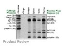 RPA III™ Ribonuclease Protection Assay Kit From Ambion (now Applied Biosciences) with RiboQuant™ Multi-Probe Template Sets From BD Biosciences