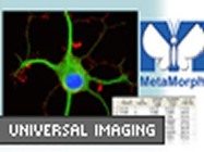 MetaMorph® Imaging System From Universal Imaging Corporation (a subsidiary of Molecular Devices)