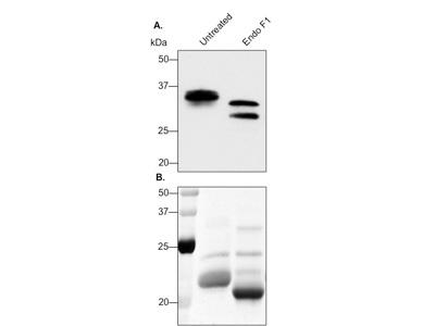 Native Protein Deglycosylation Kit From Sigma Aldrich