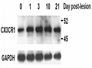 Great CX3CR1 antibody for Western blot