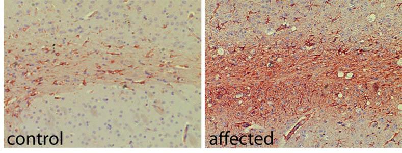 Excellent GFAP antibody for immunohistochemistry