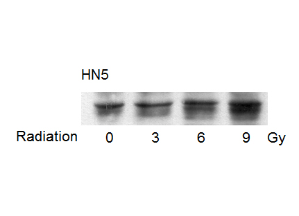Phospho-p53 (Ser15) Antibody from Cell Signaling Technology