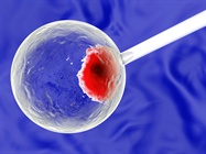 Overcoming the Challenges of Transfecting Stem Cells