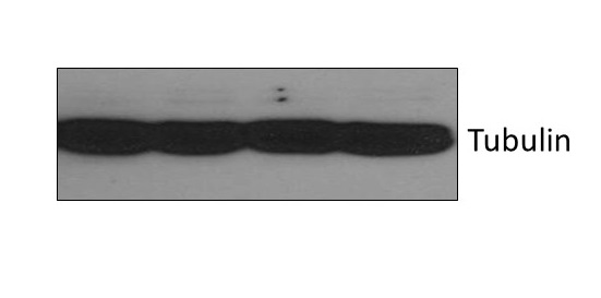 Western Blot Analysis of Tubulin