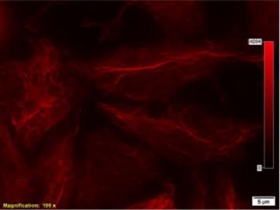Acetylated alpha Tubulin for Immunofluorescence