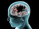 Neuroscience Tools: Not All Amyloids Are the Same