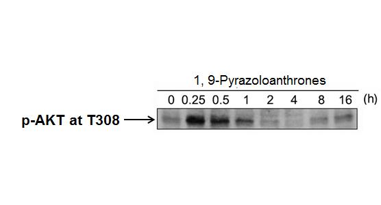 Phospho-Akt (Thr 308) Antibody from Cell Signaling