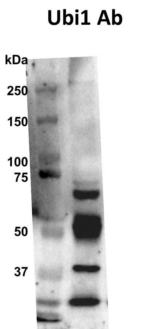 Detection of Ubiquitination by Western Blot