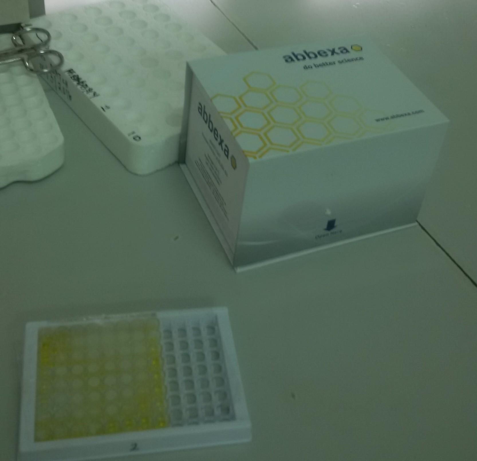 Abbexa's Human Inhibin A ELISA Kit