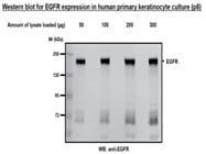 EGFR antibody for Western Blotting (Cell Signaling Technology #2232)
