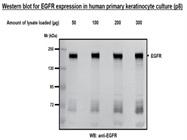 EGFR antibody for Western Blotting (Cell Signaling Technology #2232)