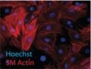 Anti-alpha Actin (1A4) [Immunofluorescence]