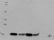 Excellent Quality Of Cofilin Antibody