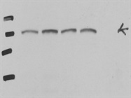Excellent NOTCH1 Antibody From Cell Signaling (Cleaved Transmembrane/Intracellular Region (NTM)