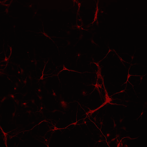 Dendrite Marker In Primary Mouse Neurons