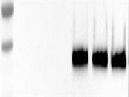 Good Antibody Against IGFBP2