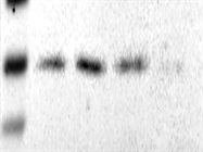 Good Antibody Against PFN1