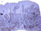 PLA2-IIa IHC Staining With Confidence