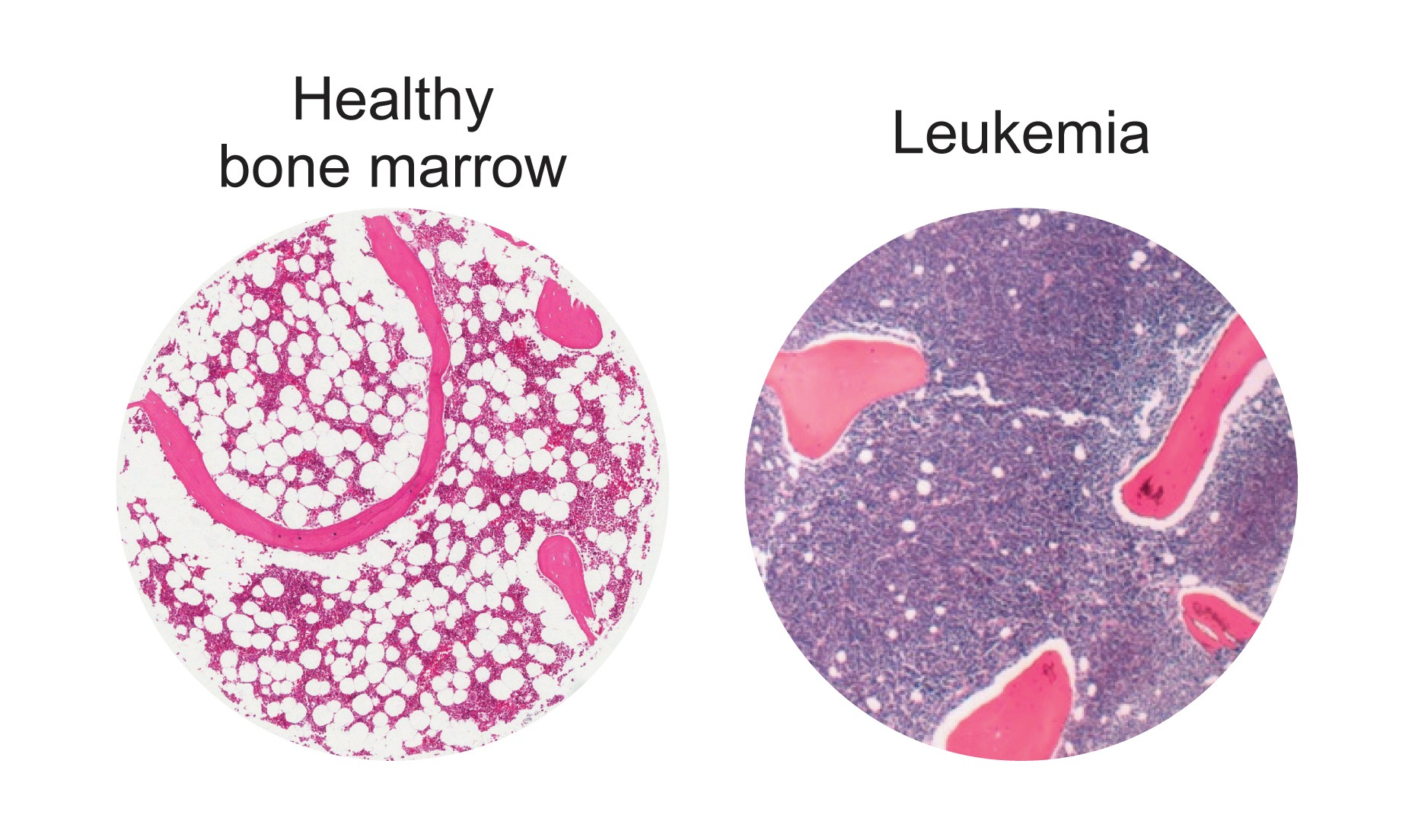 Powering Up Fat Cells Supports Leukemia Treatment