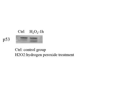 p53 Antibody for Western Blot