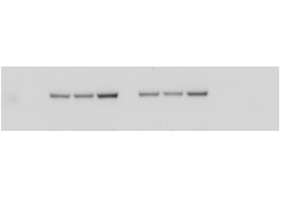 Bright Band in Western Blots for Phospho-Akt