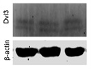 Dvl3 Antibody that Works, but Not Very Well