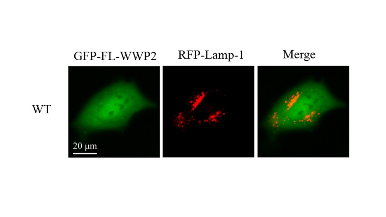 BacMam LAMP1 with RFP Tag as Lysosome Marker | Biocompare