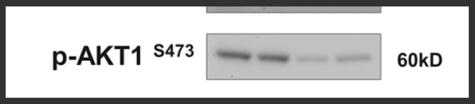Great Antibody to Detect mTORC2 Activity Via pAKT