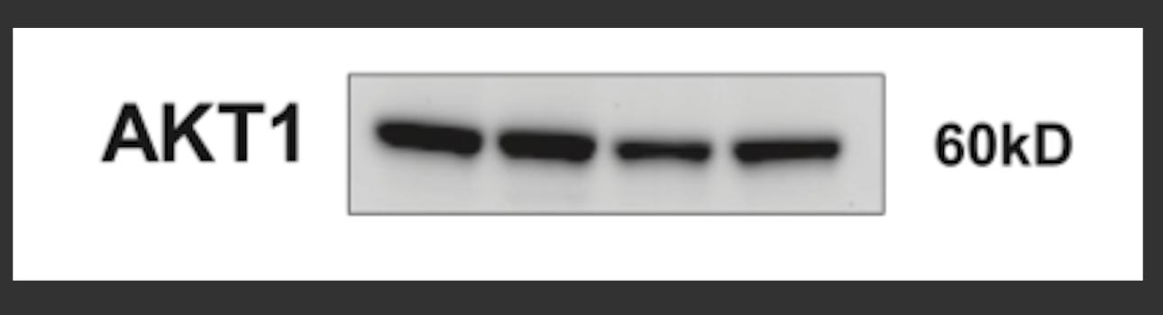 Great Monoclonal Antibody to Detect AKT1 Isoform