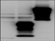 Anti-HA Tag Antibody to Detect Overexpression of Protein of Interest