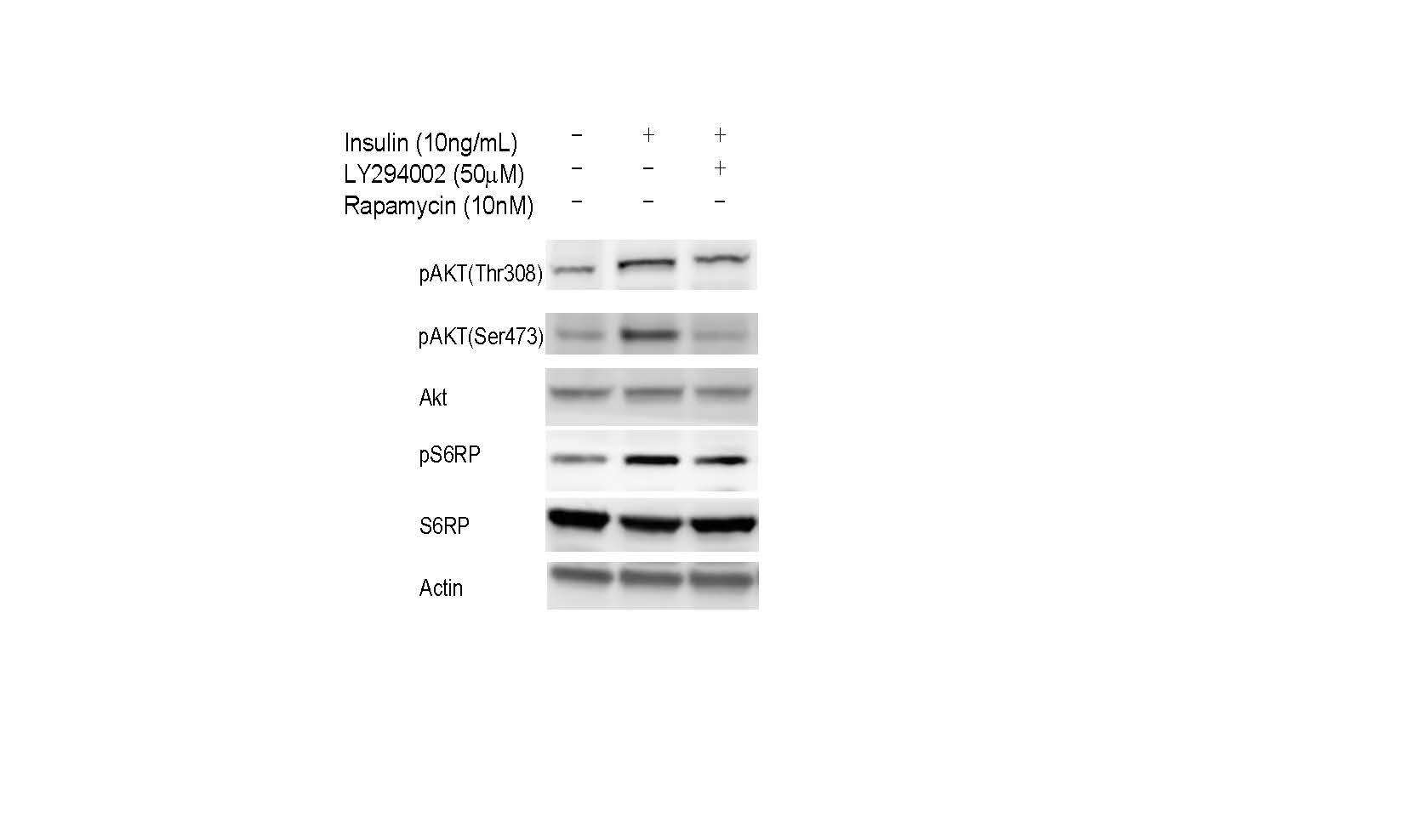 Phospho-Akt (Thr308) Antibody for Western Blot