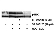 SP 600125 Inhibits JNK Activation in HOCl-LDL Treated Cardiomyocytes