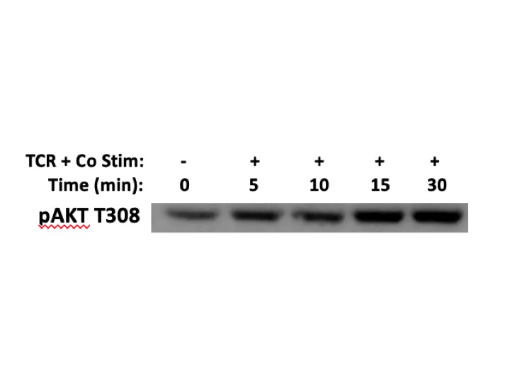 Great Antibody to Detect PI3K Signaling Readout through pAKT