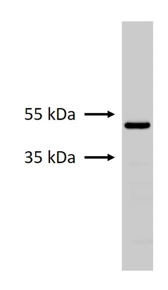 GFAP Expression in Primary Mouse Microglia