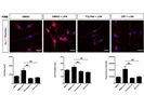 Morphological Changes in Microglia Cells After LPA Treatment