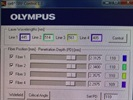 Easy Visualization for TIRF and Widefield Microscopy - Olympus