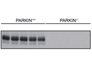 PARKIN Immunoblotting of Extracts