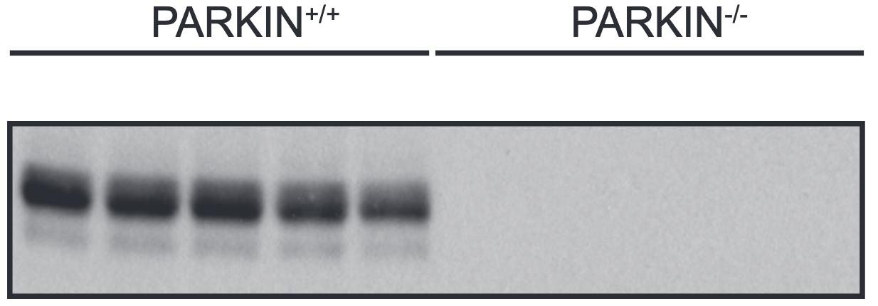 PARKIN Immunoblotting of Extracts