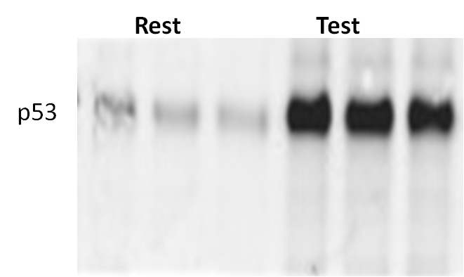 Easy Detection of p53 Expression in Western Blots