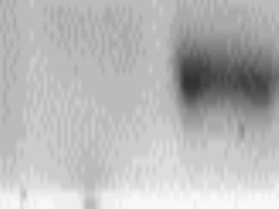 Relatively Good Antibody for pAkt T308