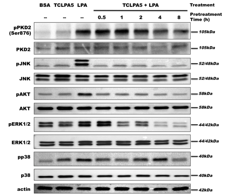 Expression of pAKT in Microglia Cells
