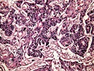 Tumor Microenvironments: Targeting Cancer from New Angles
