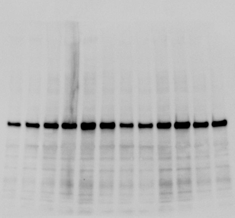 Great Antibody for Phospho-Akt Ser473