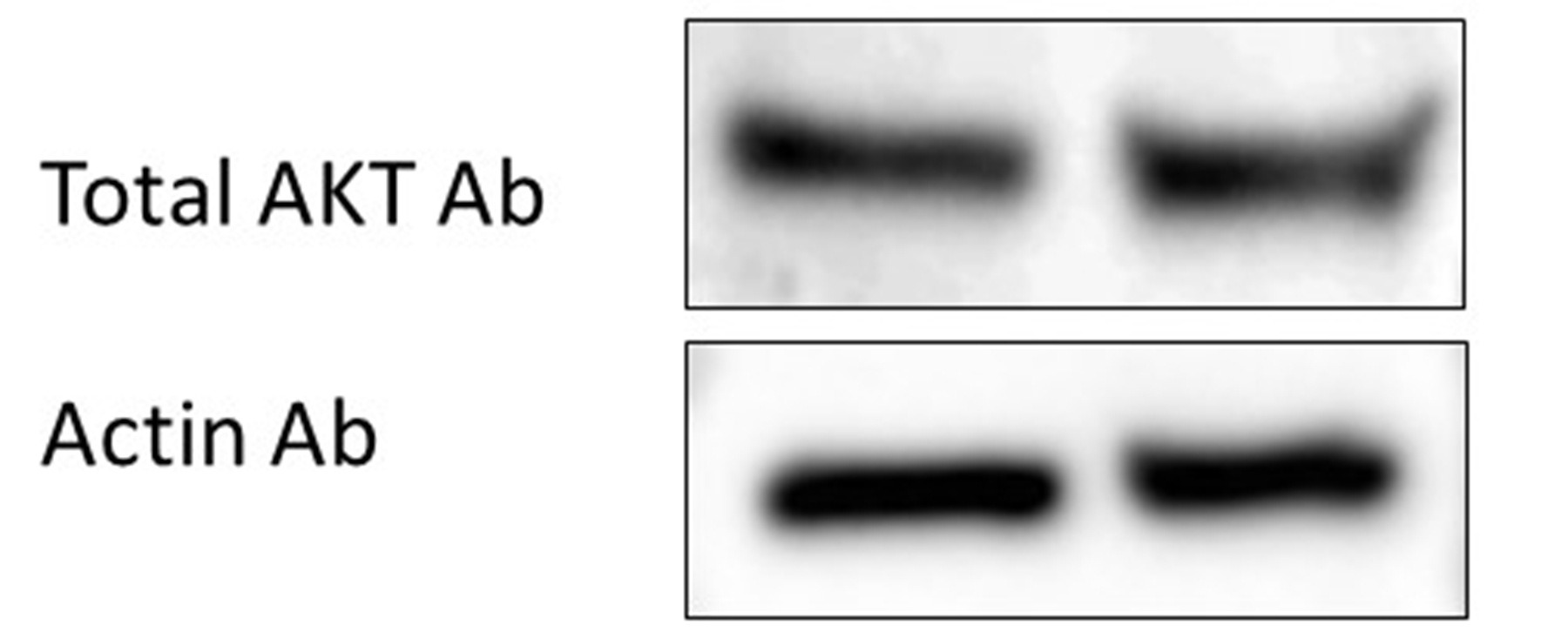 Good Antibody for Total AKT in Western Blot Experiment