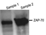 Great Zap-70 Antibody for Western Blotting Using Jurkat Cells